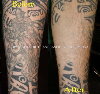 Tattoo removal methods that work tattoo laser removal near me for Tattoo removal maine