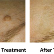 Moles before & after treatment at About Face