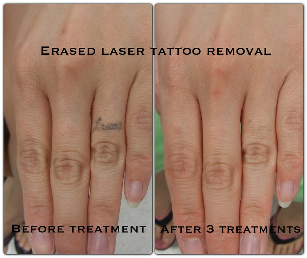 Tattoo Removal Cream Before And After Pictures