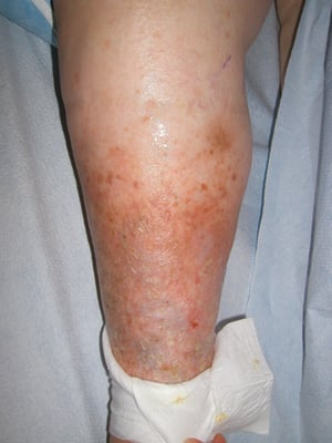 single lower leg swelling Frequently, leg swelling is caused by more than one factor such as venous insufficiency, obesity, and previous saphenous vein harvest for heart bypass surgery swelling may occur due to high pressure in the veins of the legs, local injury, inflammatory changes, obstruction of lymphatic fluid outflow, infection, low blood.