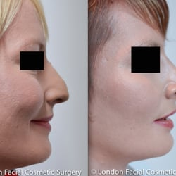 Rhinoplasty/ Nose Re-Shaping
