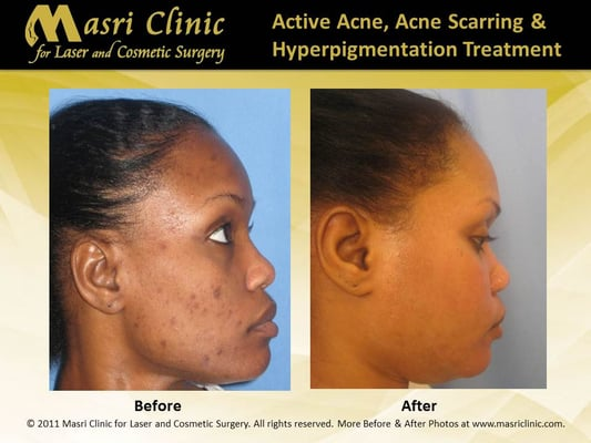 acne and in cosmetic improvement. sessions with the pulsed dye laser
