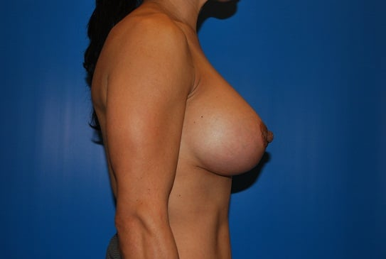 Excited too breast side view